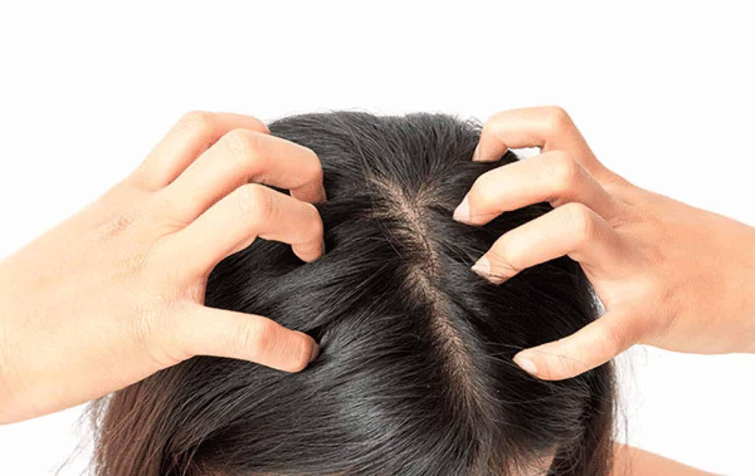 Douleurs du cuir chevelu